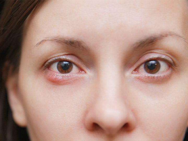 Eye Pimples - Causes, Treatments and Prevention Methods – SkinKraft