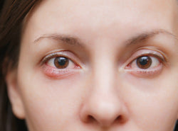 Eye Pimples - Causes, Treatments and Prevention Methods