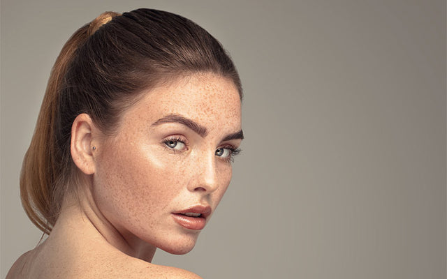 Freckles On Face & Body: What, Why, Removal & Prevention