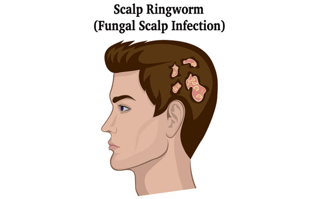 Fungal Scalp Infection (Or Tinea Capitis) - How To Identify & Treat It?