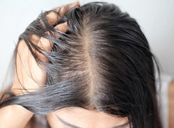 How To Get Rid Of Oil From Your Greasy Hair & Scalp?