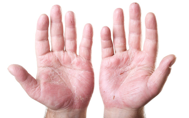 Hand Dermatitis: Causes, Prevention & Treatments