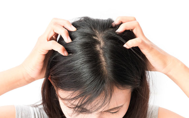 Head Lice: How To Get Rid Of Them With Simple Steps