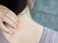 Heat Rash: How To Treat And Prevent It This Summer