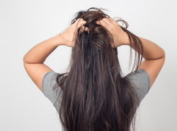 Itchy Scalp And Hair Loss: What Is The Relation Between Them?