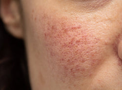 How To Treat Rosacea - Causes, Symptoms, Types