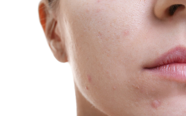 Period Acne Why It Happens And How You Can Get Rid Of It Skinkraft