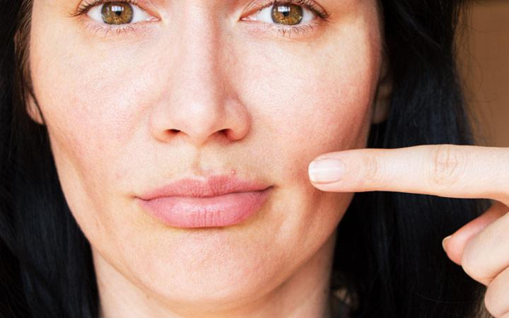 How to Treat Pimple On Lip : Causes + Prevention Tips – SkinKraft