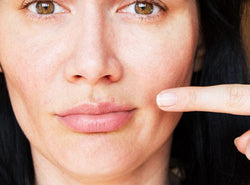 How to Treat Pimple On Lip : Causes + Prevention Tips