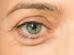 Puffy Eyes: Triggers, Treatments & Foods To Eat/Avoid