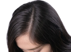 Scalp Buildup: The Truth You Need To Know