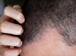Scalp Eczema - Signs, Causes, Prevention And Treatments