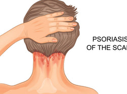 Scalp Psoriasis: Oral & Topical Treatments, Home Remedies & Quick Tips