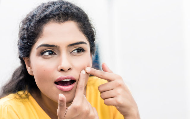 Skin Purging Or Acne? Know The Difference Before Opting For Treatments