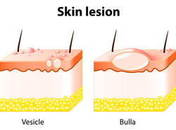 Skin Lesions: Symptoms, Causes And Treatment