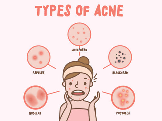 What Are The Different Types of Acne and How To Treat Them