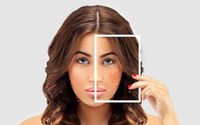 What Is Hyperpigmentation - Causes, Treatments, Prevention Tips – SkinKraft