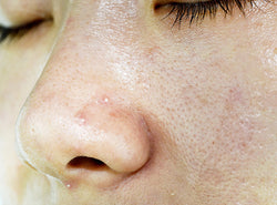 Oily Skin - Causes, Prevention, Treatments