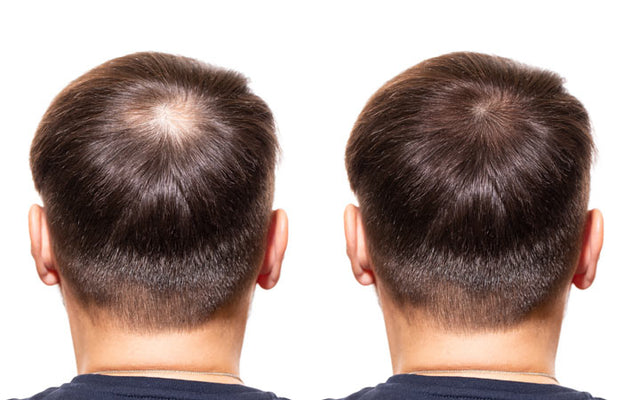 The Best DHT Blockers & How They Can Combat Hair Loss