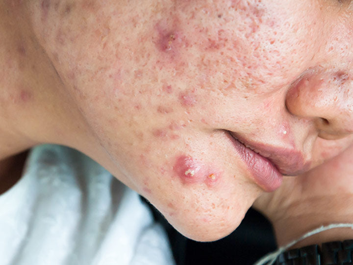 What Is Cystic Acne And How Do You Treat It Skinkraft