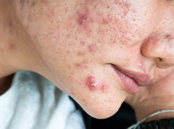 What Is Cystic Acne And How Do You Treat It?
