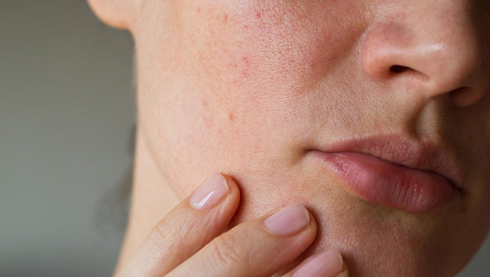 If You Have Sensitive Skin, This Is A Must-Read!