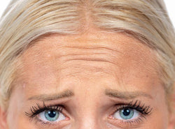 What Are Frown Lines - All You Should Know About Frown Lines