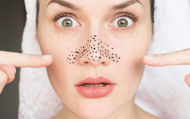 Oily Nose: Causes, Remedies & Prevention Tips