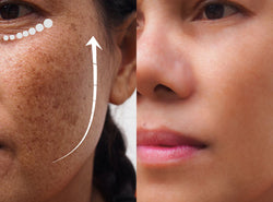 Kojic Acid: Your Ultimate Solution To Skin Pigmentation