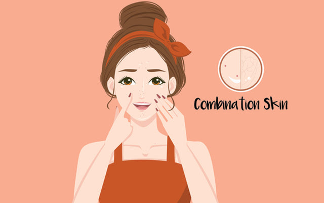 Combination Skin: What Exactly Is It And How To Manage It?