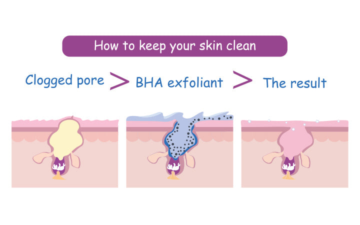 3 steps for  how to clean up clogged pores using bha salicylic cleanser exfoliant for pure skin care routine