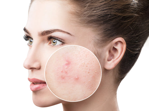 Acne or acne vulgaris