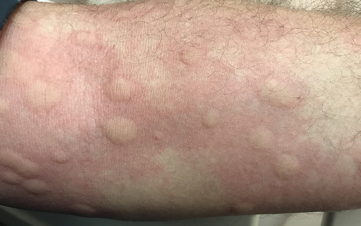 Body part showing urticarial rash from drug allergy