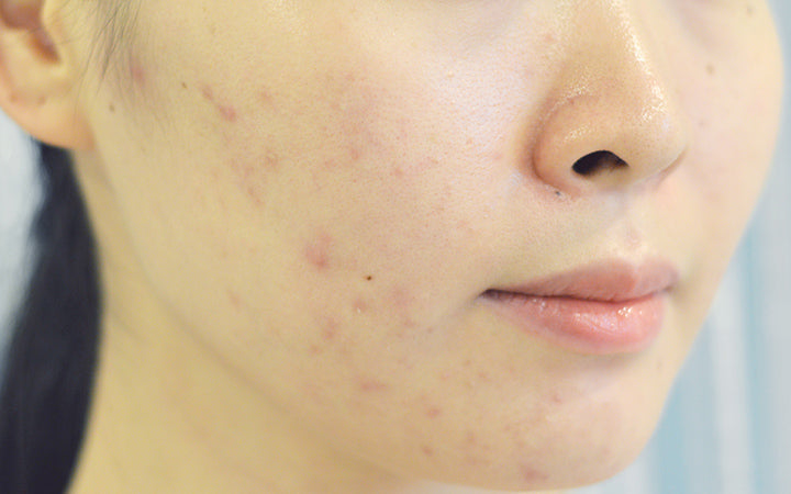 Damaged facial skin with redness