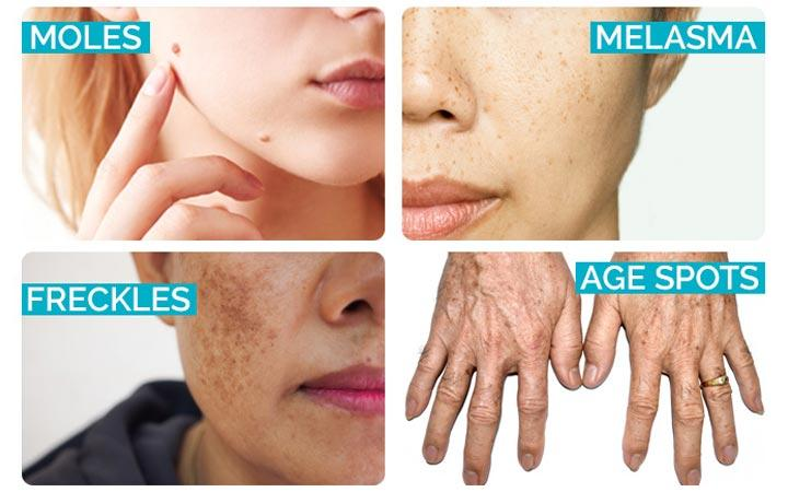Freckles On Face Body What Why Removal Prevention Skinkraft
