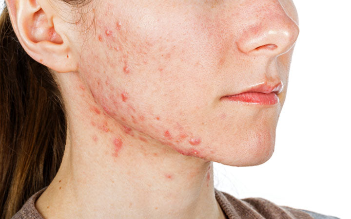 Girl with Jawline acne
