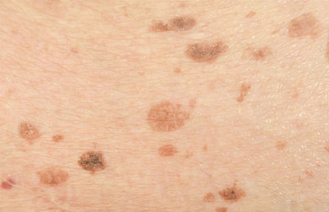 Dark Spots - Causes, Prevention Tips And Treatments ...
