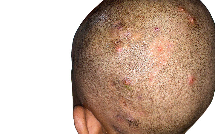 Numerous painful furuncles or boils and folliculitis on head.