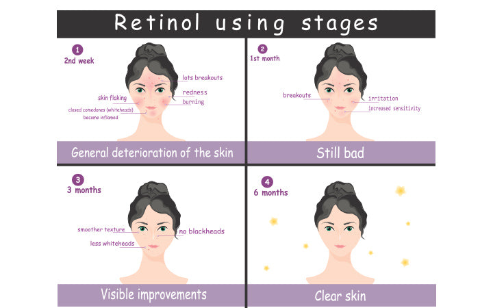 Vector poster stages of using topical retinol acne treatment