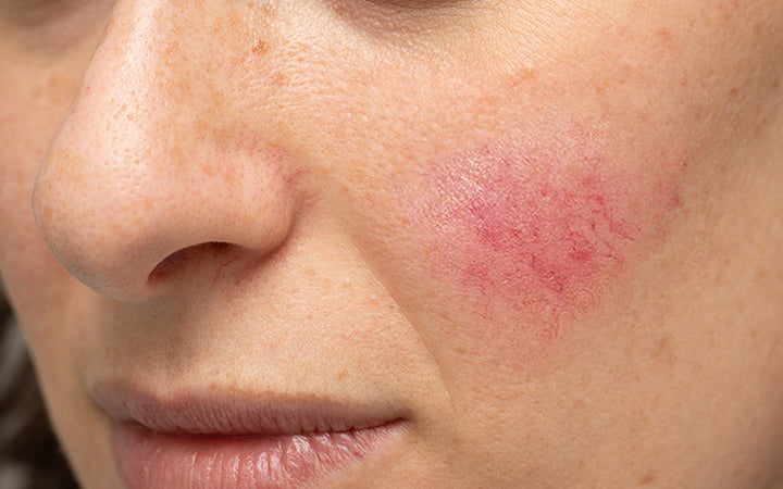 Woman with blotchiness on the cheek