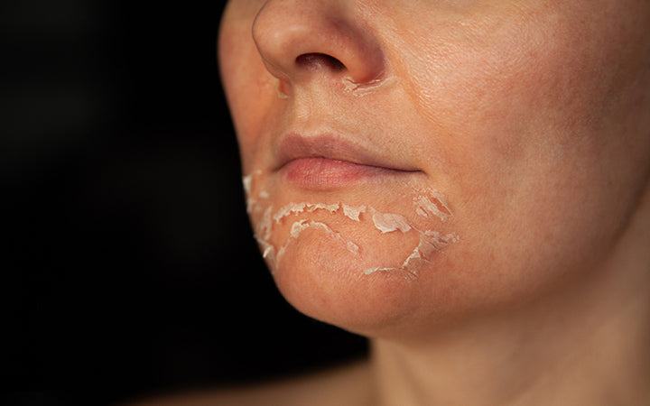 Woman with flaky skin on the face