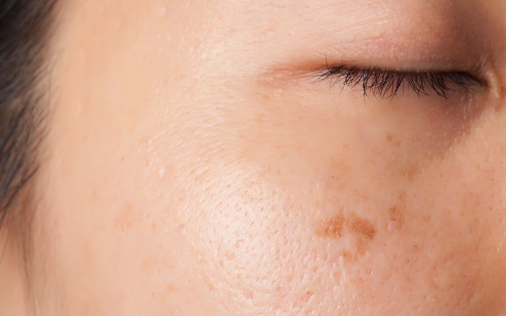 Women skin with blemish and spots