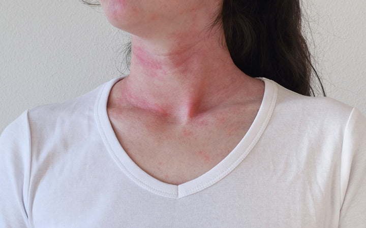 allergic skin reaction on female neck