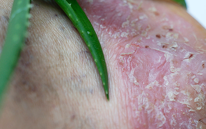 aloe-vera leaf on a heel with psoriasis lesions