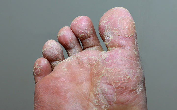 athlete's foot having fungal infection