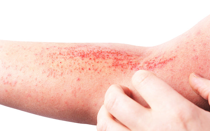 atopic eczema is a type of inflammation of the skin at foot