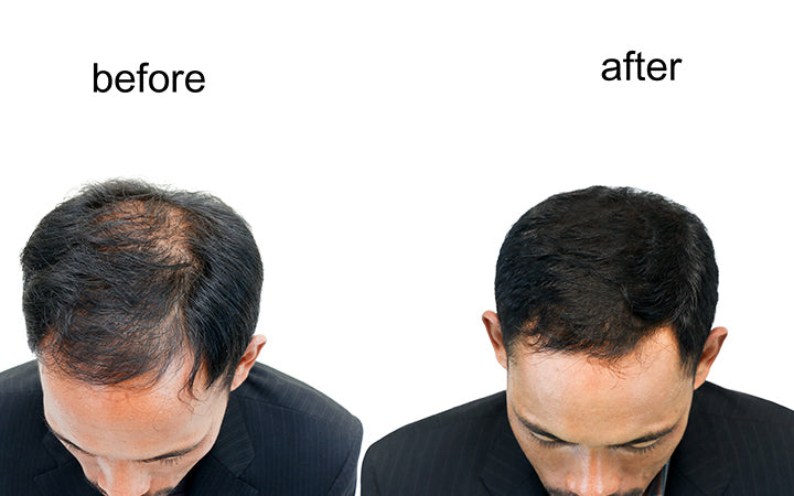 before and after bald head of a man
