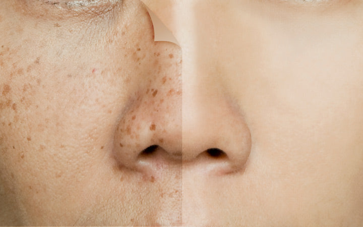 before and after retouching freckles on asian woman face