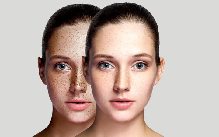 before and after woman face removing freckles on face