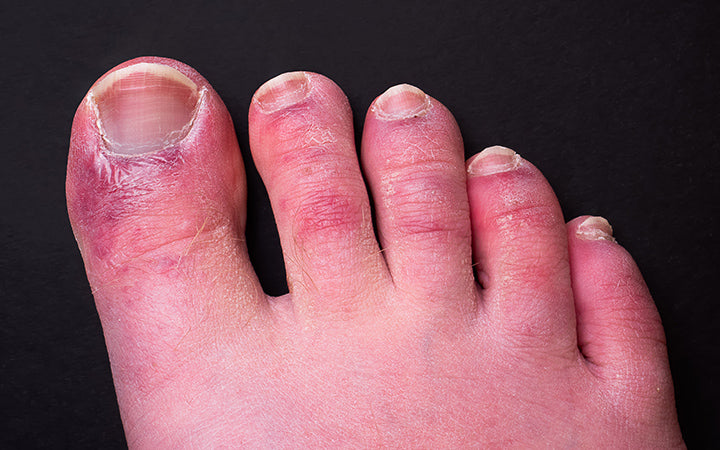 common side effect of covid-19 often referred to as covid toe